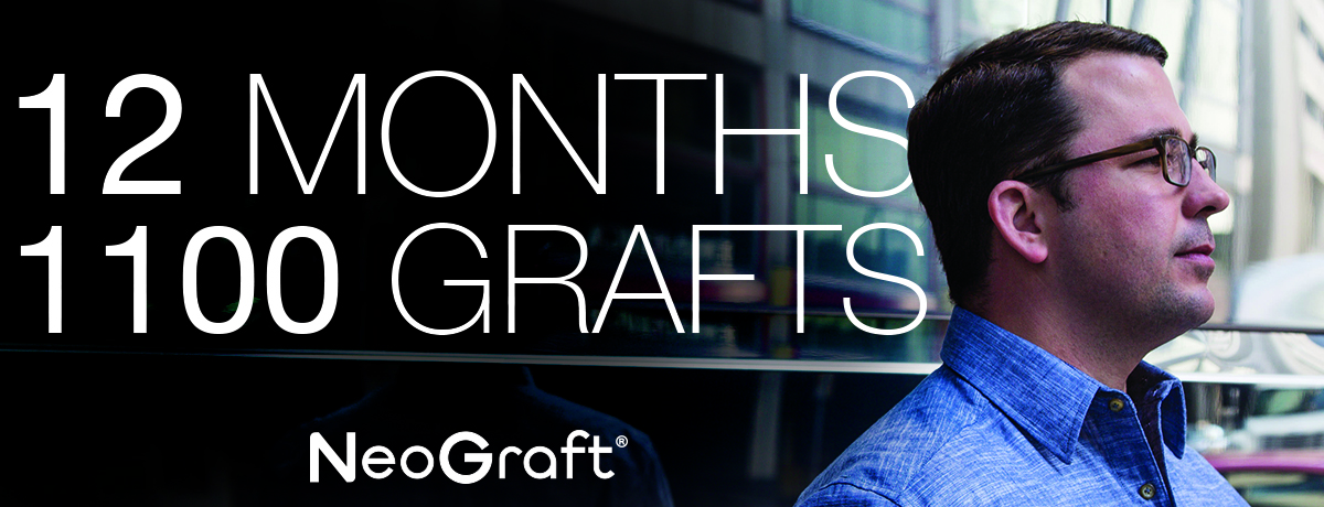 12 Months 1100 Grafts