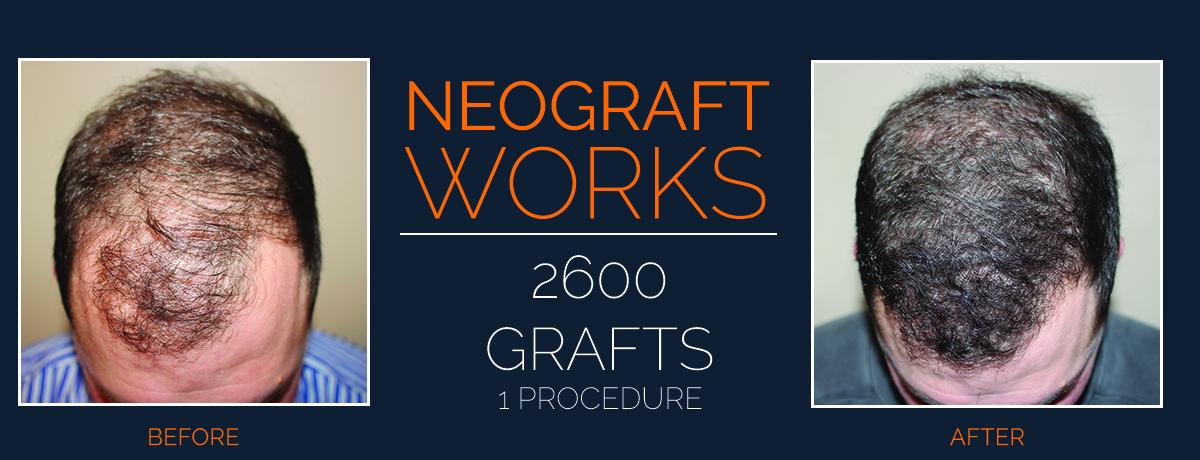 NeoGraft Works